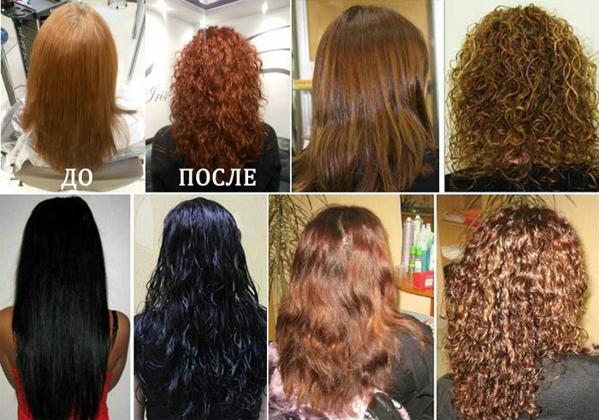 Болят волосы у корней и выпадают что делать