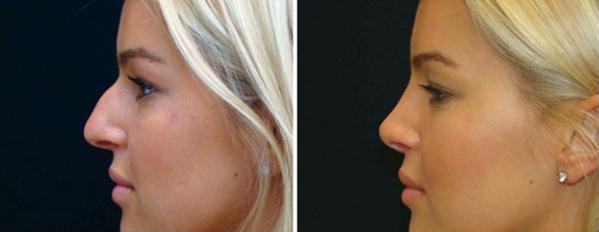 Ринопластика носа петербург