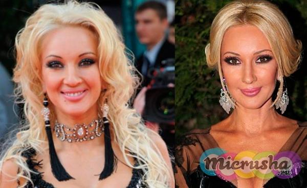 Лера Кудрявцева до пластики и после