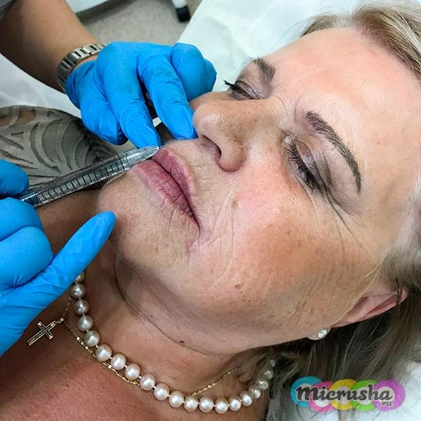 уколы в губы