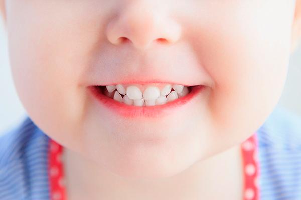 Названия самых безопасных зубных паст с натуральным составом без мяты и ментола или лаурилсульфат натрия