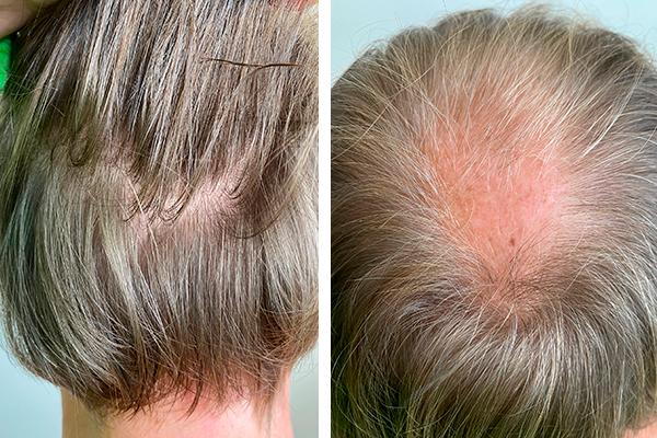 Пересадка волос для мужчин. Стоимость операции и как она проходит